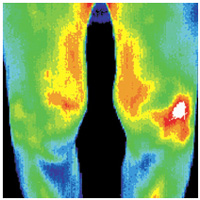knee_pain_thermographic_image