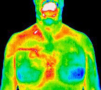 male-breast-cancer-thermogram