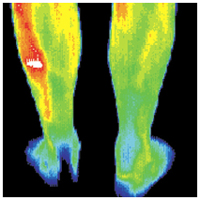 thermography_image_leg